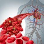 Trombofilia ereditaria